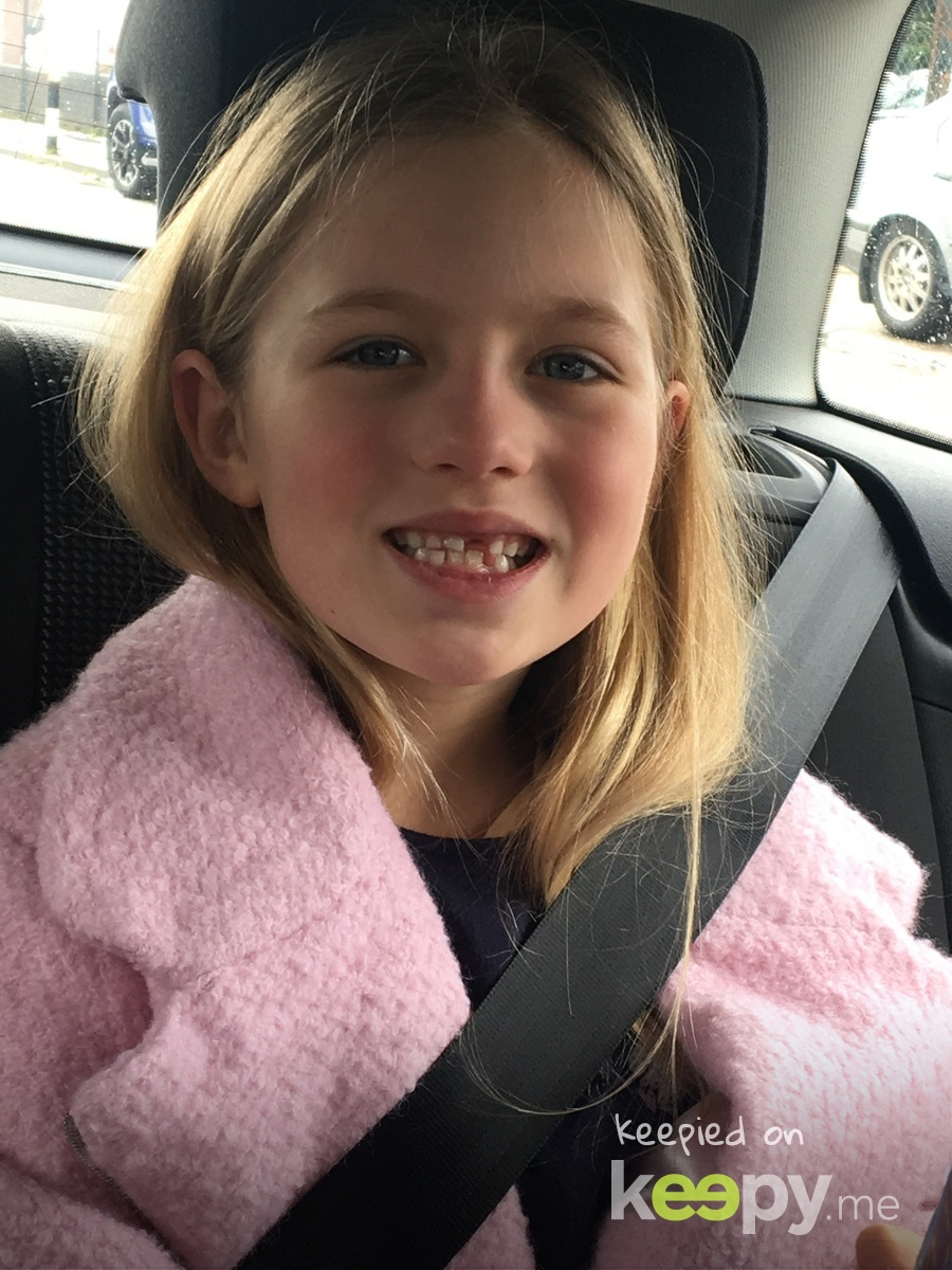 4th tooth lost 😋