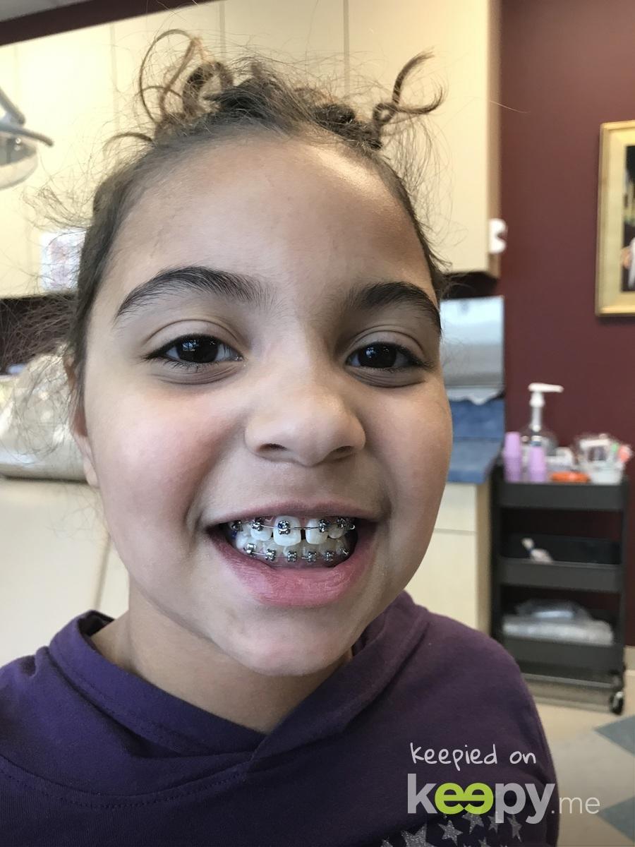 Upper braces!