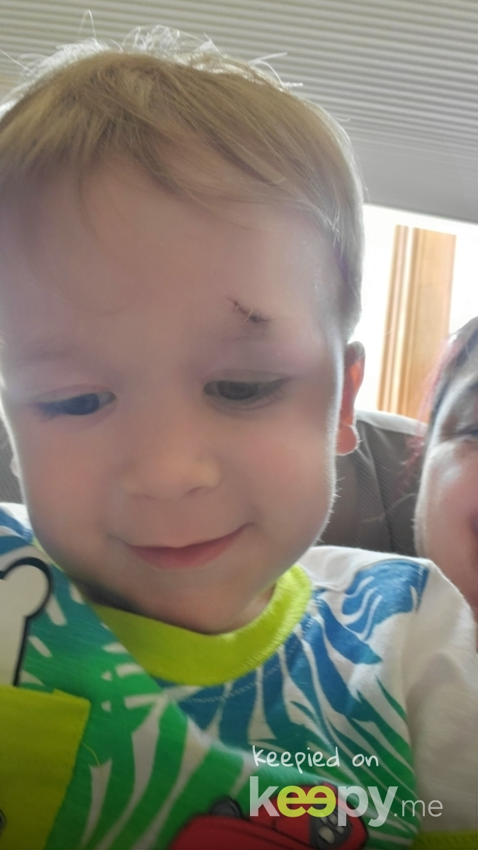 zachs first stitches » Keepy.me